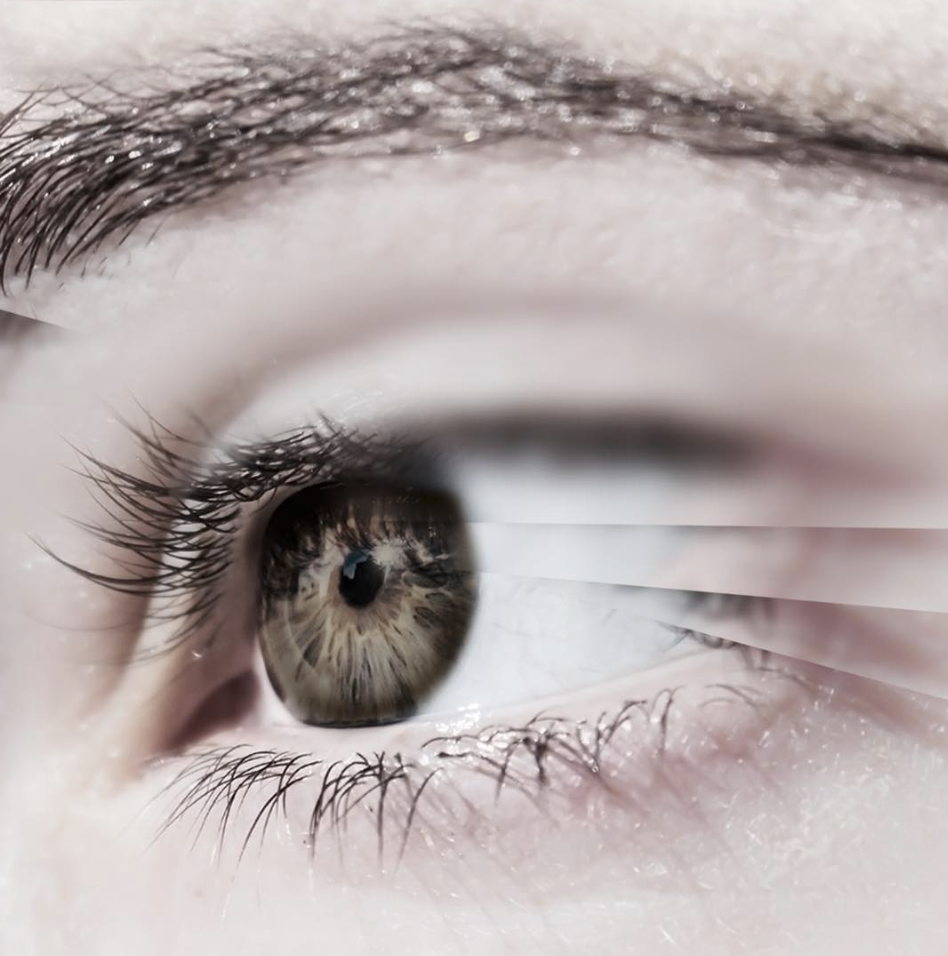 3 Effective Eyelid Surgery Alternatives for Droopy Eyes