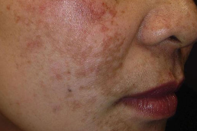 Laser Removal Treatment for Hyperpigmentation in Singapore