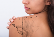 Pico Laser Tattoo Removal Singapore