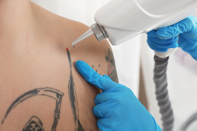 Best Tattoo Removal Laser In Singapore