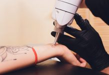 Best Tattoo Removal Laser Singapore, Best Tattoo Removal Singapore