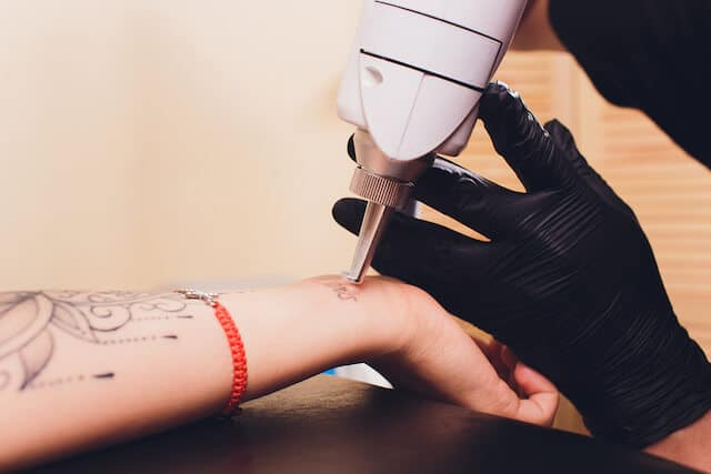 4 Questions To Ask Before The Tattoo Removal Process